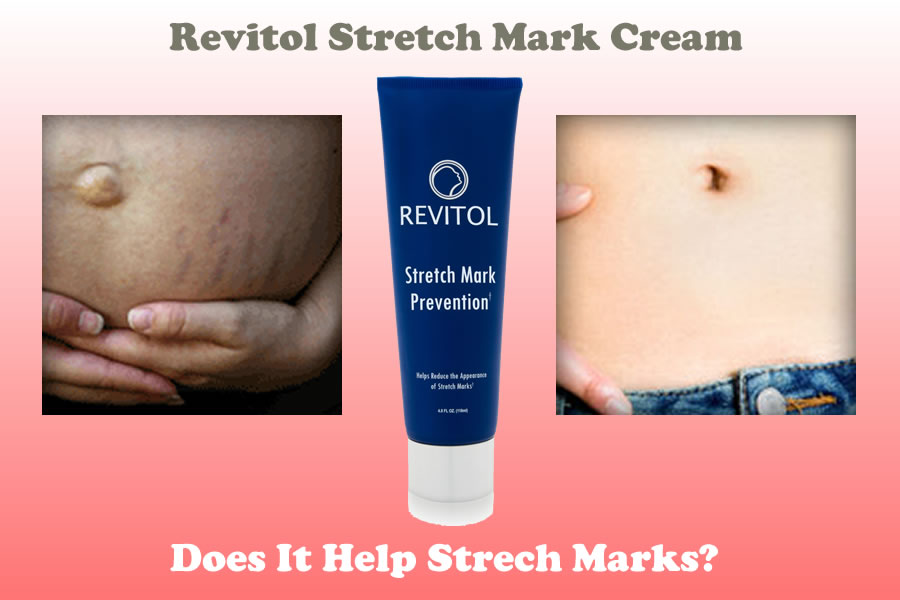 Revitol Stretch Mark Cream Review Does It Really Works