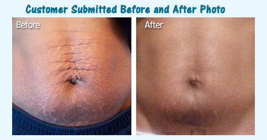 Trilastin Sr Review Does Trilastin Really Work For Stretch Marks