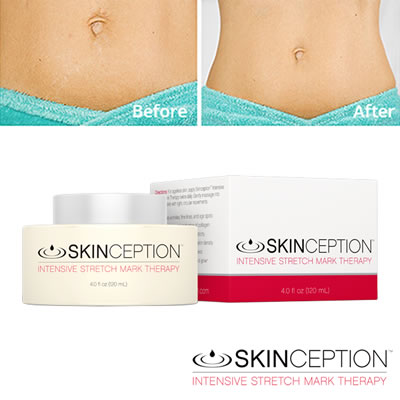 Best Stretch Mark Creams For Feeling And Looking Your Most Beautiful