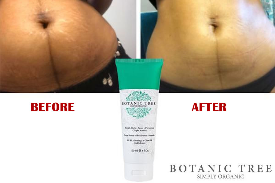 The Botanic Tree Stretch Mark Cream Is It An Organic Delight For